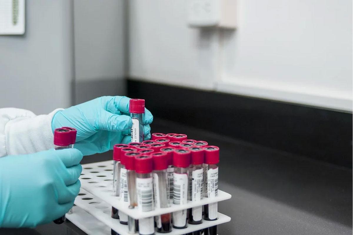 Situation SARS-CoV-2, Stand 14.01.2021, 10 Uhr – 7-Tage-Inzidenz bei 81,6 – 21 Neuinfektionen seit gestern